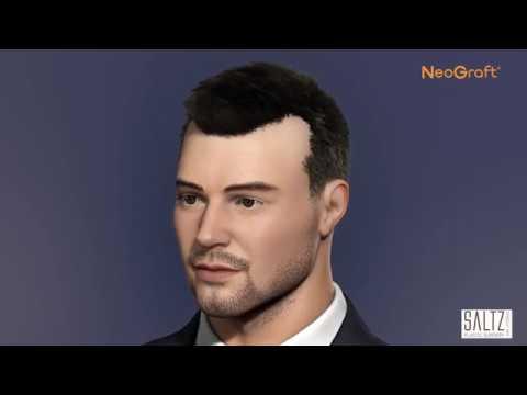 Saltz Plastic Surgery - Hair Transplant (NeoGraft)