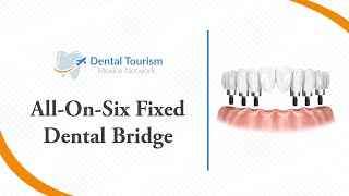 All on Six Fixed Bridge (Full Mouth Dental Implants) Chiapas - Dental Tourism Mexico