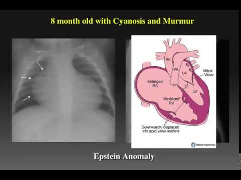 Chest Radiography in pediatric heart disease - YouTube