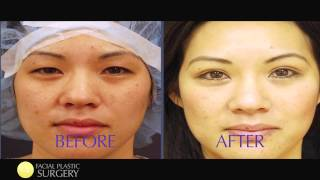 Asian Eye Surgery - Dr Chase Lay MD - San Jose Silicon Valley Bay Area CA