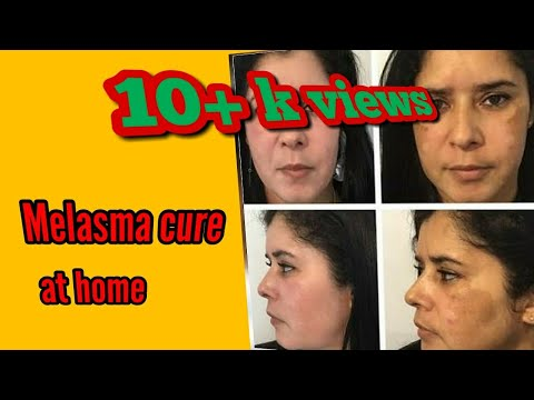 झाइयां|Melasma Treatment At Home Using Coffee Pack|Chloasma|jhaiya treatment|Sandhy's beauty hub
