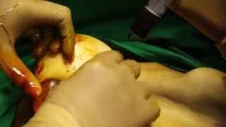Breast implant Thumbnail