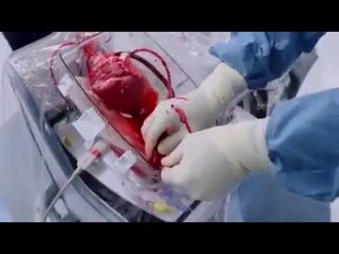Open Heart Surgery Video (Live Heart Beating) | India Video