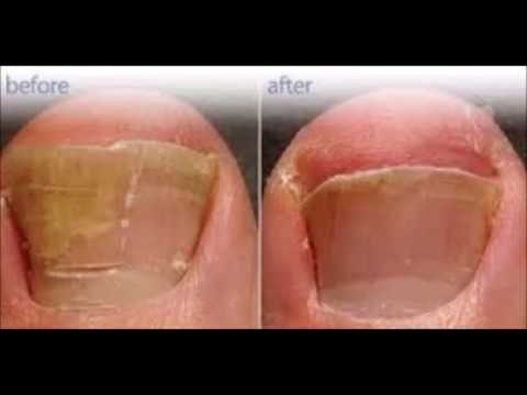How Long Does It Take To Get Rid Of Toenail Fungus With Tea Tree Oil ...