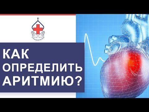 💔 Мерцательная аритмия сердца: признаки, диагностика, лечение. Мерцательная аритмия сердца. 12+