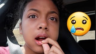 I Got My Wisdom Teeth Removed *Hilarious* (Surgery Vlog) | LexiVee03
