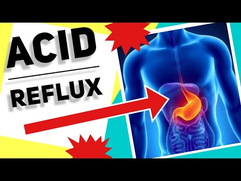 how-to-stop-acid-reflux---10-natural-remedies-+-10-natural-tips-|-gerd-/-heart-burn