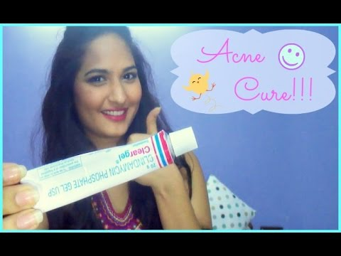 How To Get Rid Of Acne Pimples Clear Gel Youtube