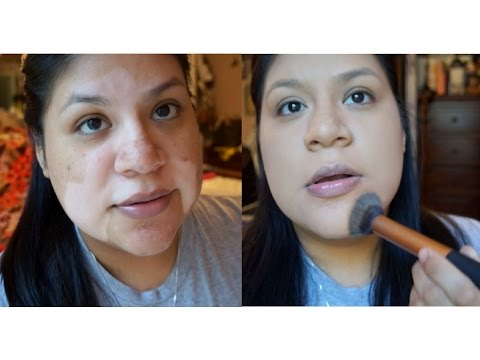 HOW TO: Conceal VITILIGO (face)