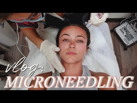 I tried MICRONEEDLING: daily vlog ft. Chef Steph thumbnail