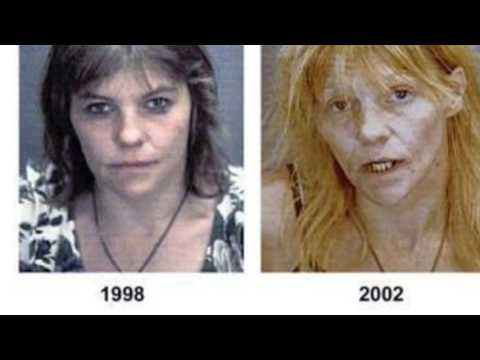 Effect Of Drugs On Teenagers