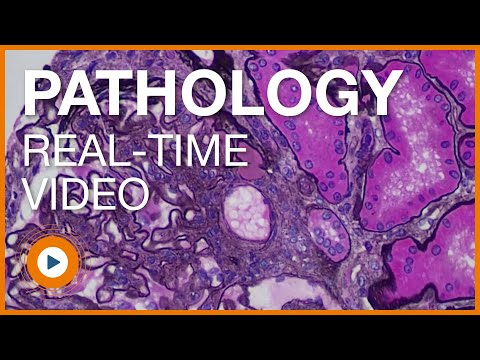 Clinical Pathology HD Video