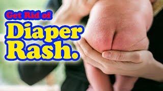 6 Home Remedies For Diaper Rash.