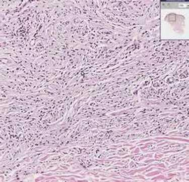 Histopathology Skin--Neurofibroma - YouTube