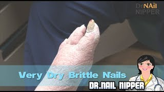 Very Dry Brittle Nails