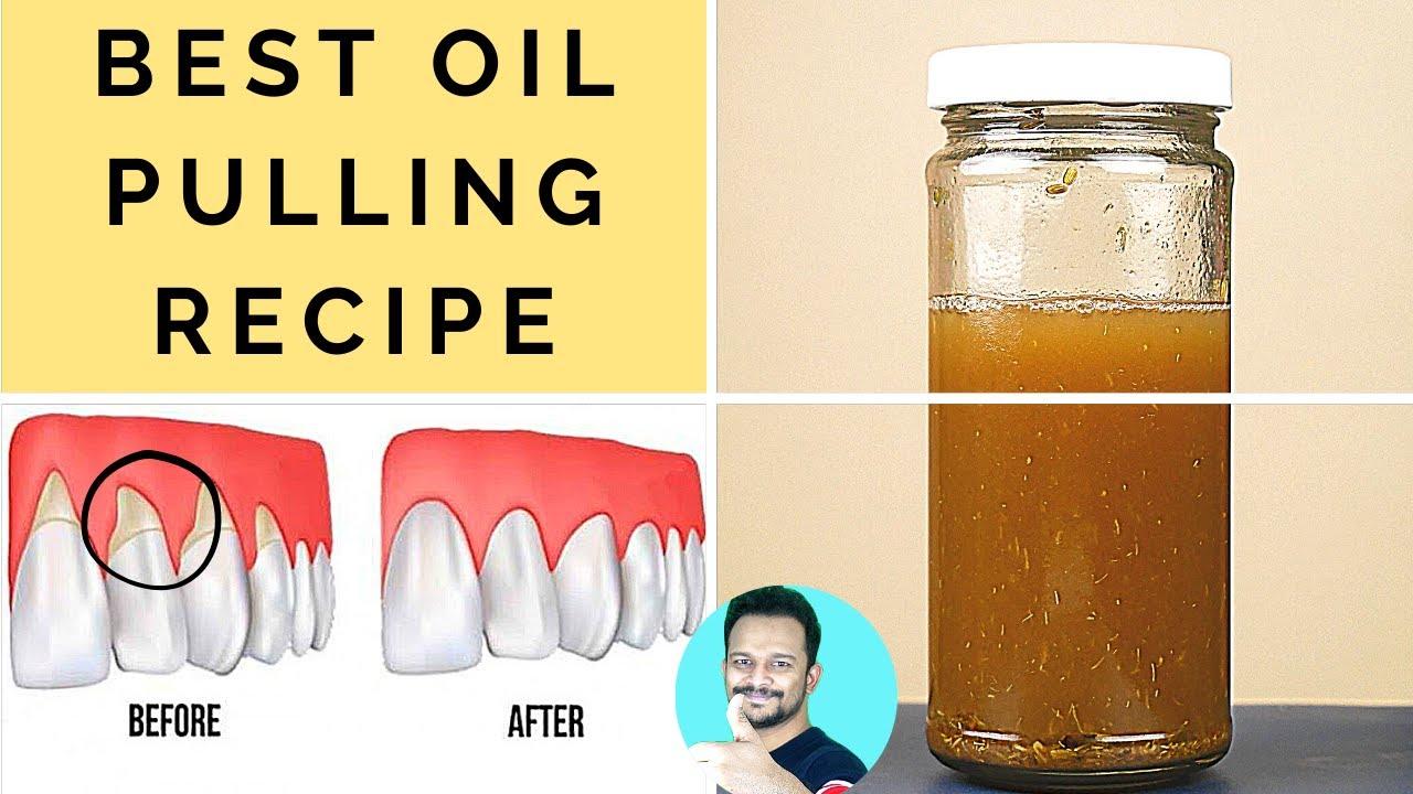 Heal Gingivitis, Receding Gums, Prevent Plaque & Tartar (World's Best Oil Pulling Recipe)