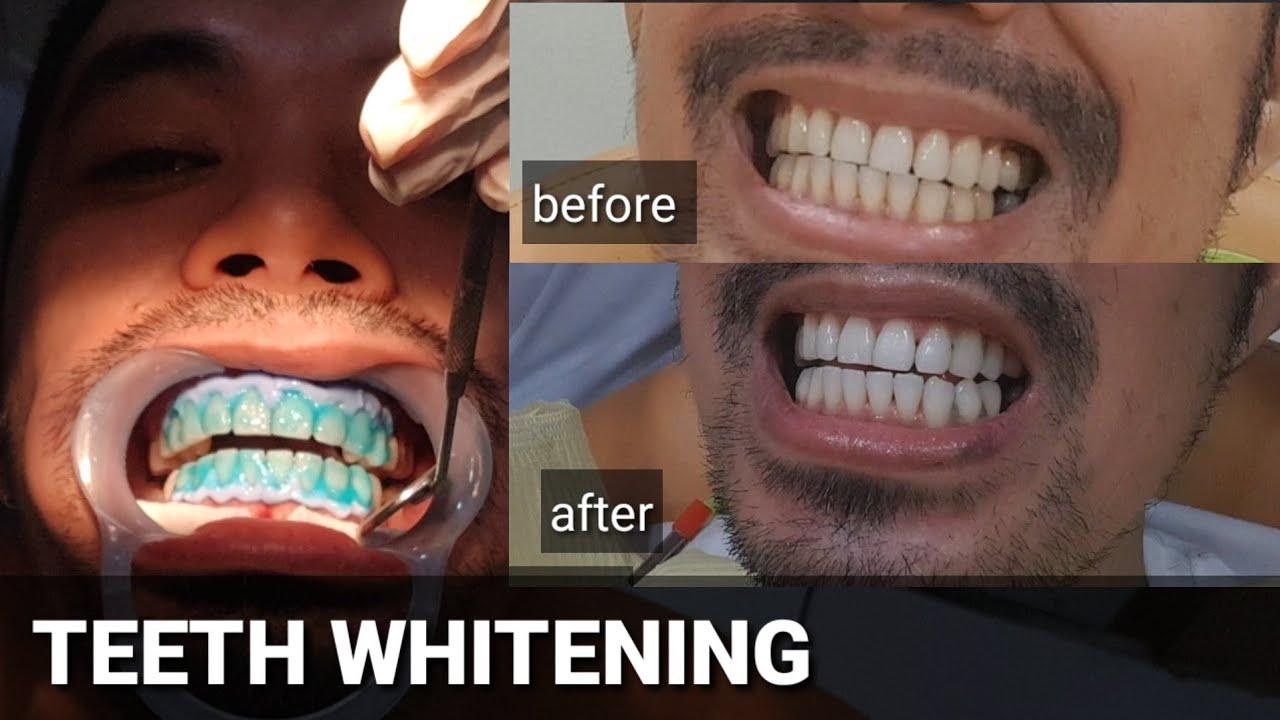 Teeth Whitening Sensitive Teeth My Los Feliz Beauty Blog