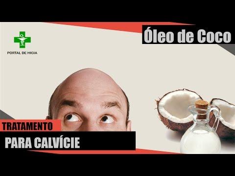 Óleo de Coco Extra Virgem - Tratamento para Calvície ( ALOPÉCIA ANDROGÊNICA E ALOPÉCIA AREATA )