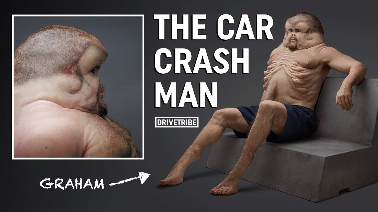 This man is physically evolved to cope with car crashes