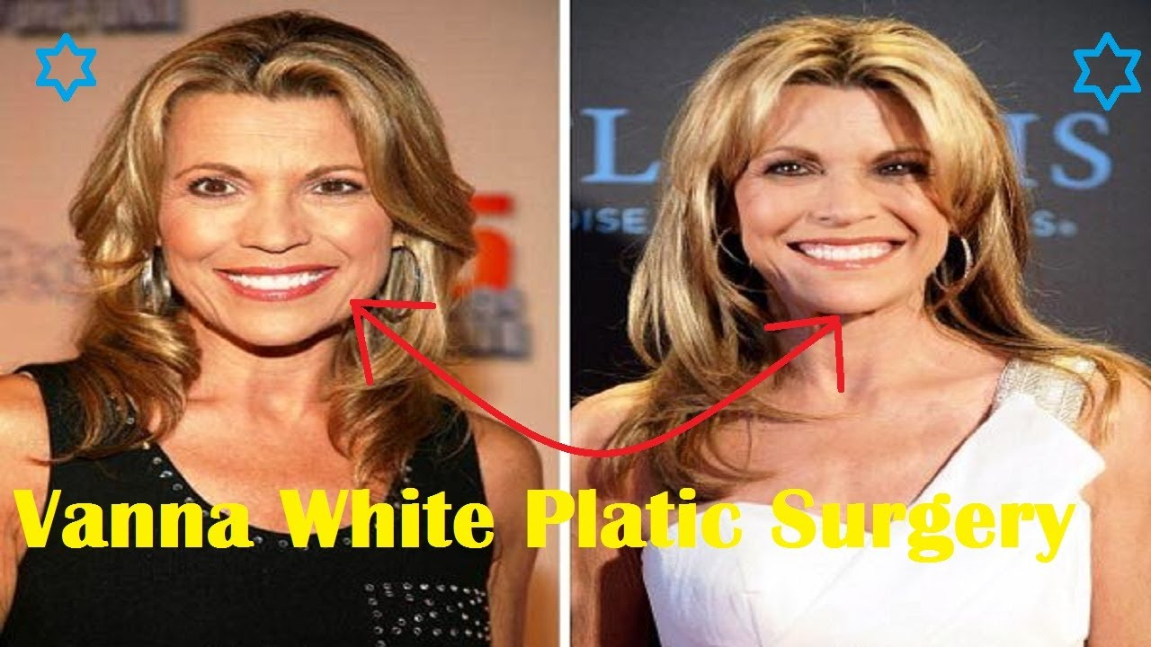 Vanna White Plastic Surgery – Secret Behind Her Youthful Look