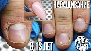 Наращивание ногтей в 12 лет Заусенцы как их убрать Детский подростковый маникюр Ногти полигелем