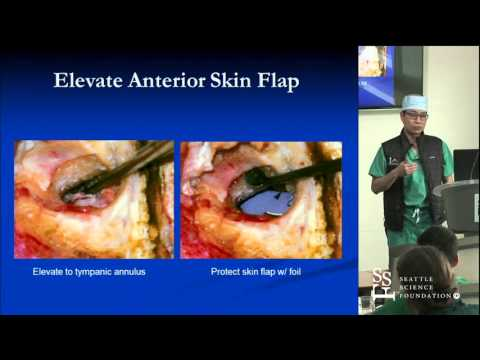 Functional Ear Surgery by Trac Duong, MD