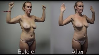 Liposuction Melbourne before and after case study - Kelly Thumbnail