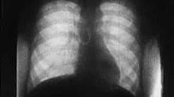 Herztatigkeit roentgenfilm II (1937)