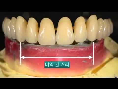 Full denture kit hitem company youtube full denture kit hitem company solutioingenieria Image collections