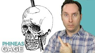 Phineas Gage And The (Literally) Mind-Blowing History Of Brain Science | Random Thursday