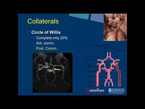 SIR-RFS Webinar (2/27/2018): Neuro Interventional Radiology: Carotid Artery Stenting