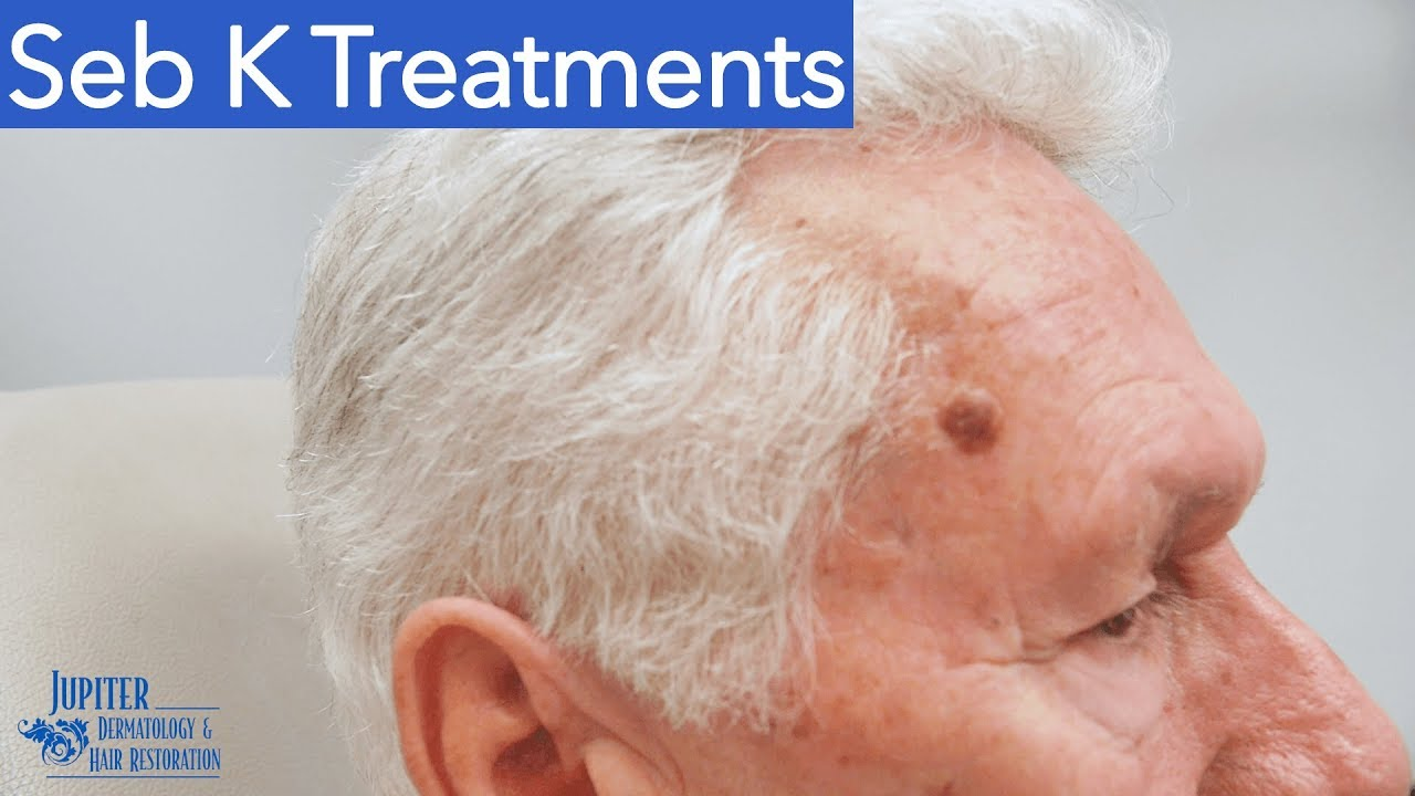 Seborrheic Keratosis Treatment Removal Eskata Liquid Nitrogen