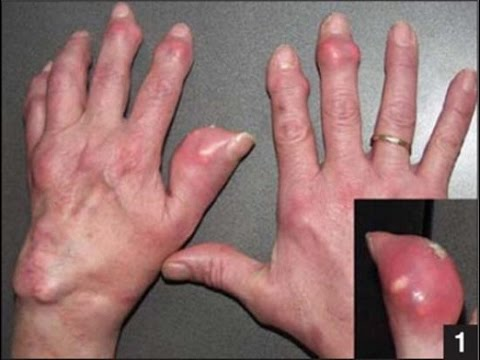 Mẹo chữa khỏi bệnh Gout cực đơn giản