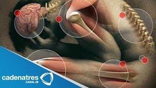 ¿qué es la fibromialgia? / temas de salud