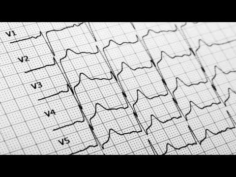 Эпилепсия – 9 ранних признаков – признаки эпилепсии