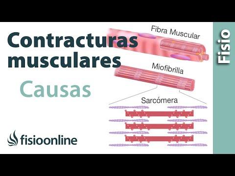Nudos en la espalda, contracturas musculares - Qué son y cuáles son ...
