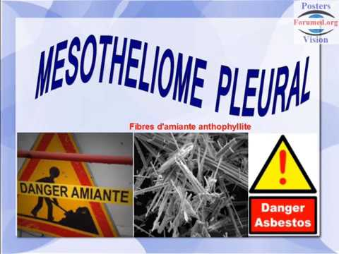 pleural-mesothelioma-and-products-containing-asbestos
