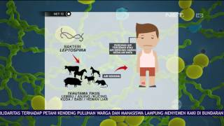 Download Video Wabah Leptospirosis Mulai Merebak dan Menyebar di Beberapa Wilayah Jawa - NET12 MP3 3GP MP4