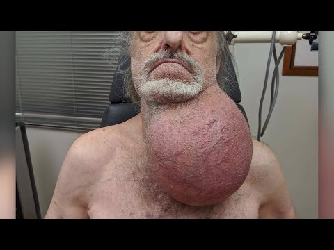 DJ Fountz - New Jersey Man Gets Soccer Ball-Sized Tumor Removed From Neck