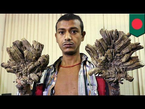 バングラデシュの「ツリーマン」 16回の手術で本来の手を取り戻す