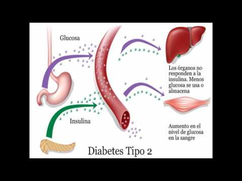 Diabetes y Moringa Estudio
