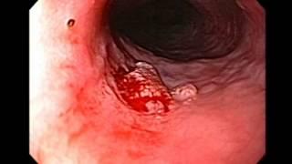 Endoscopy of Large Esophageal Papilloma