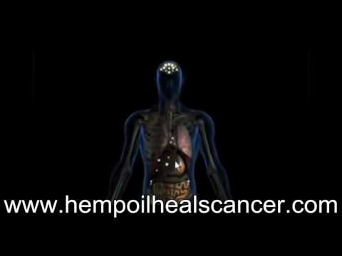 Hemp Oil Heals Cancer - Scientists
