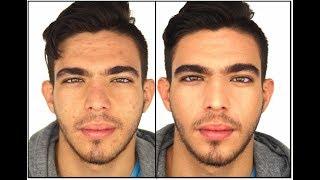 Grooming Masculino - Como cubrir acne de forma invisible