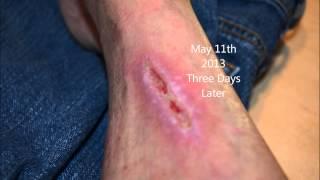 Progressive wound healing