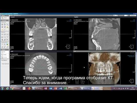 Инструкция по установке Xelis Dental для просмотра КТ на Windows 7