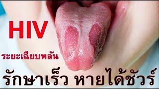 #32 HIV ระยะเฉียบพลัน รู้เร็ว รักษาเร็ว หายได้ชัวร์ T/Line 095 6406798