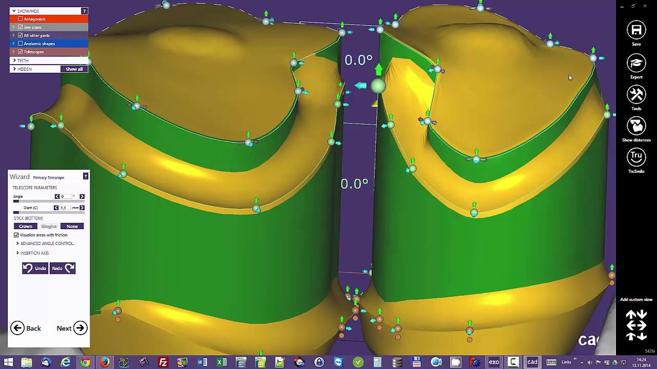 Exocad attachment design demo video-Shining 3D