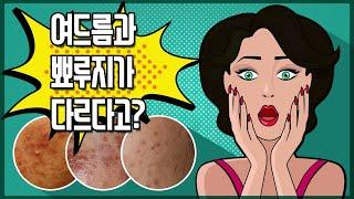 여드름과 피부트러블인 뾰루지의 차이점과 치료법?