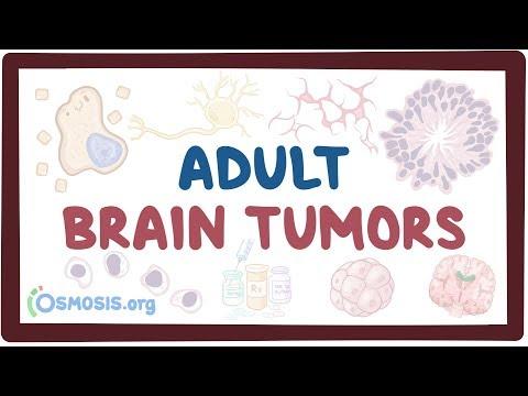 Adult Brain Tumors - Causes, Symptoms, Diagnosis, Treatment, Pathology